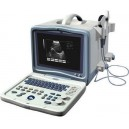 ORZ-8000A Portable B mode Ultrasound Scanner