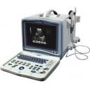 ORZ-8000A Portable B mode Ultrasound Scanner